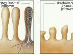 U osób chorych gluten działa toksycznie i powoduje zanik kosmyków jelita cienkiego (Rys.: www.i-zdrowie.pl)