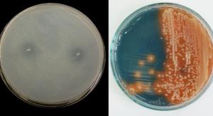 Bakterie | fot. Tomasz Płociniczak