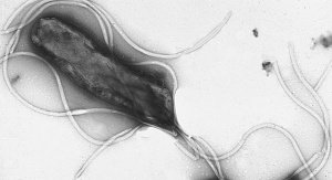 Helicobacter pylori pod mikroskopem. By Yutaka Tsutsumi, M.D.ProfessorDepartment of PathologyFujita Health University School of Medicine - Yutaka Tsutsumi, M.D.ProfessorDepartment of PathologyFujita Health University School of Medicinehttp://info.fujita-hu.ac.jp/~tsutsumi/photo/photo002-6.htmhttp://info.fujita-hu.ac.jp/~tsutsumi/image/002/2-6.jpg, Copyrighted free use, https://commons.wikimedia.org/w/index.php?curid=535442