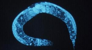 Pasożyt z rodziny Caenorhabditis elegans. Źródło: Wikipedia - domena publiczna