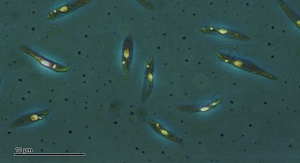 Wiciowce z gatunku Leishmania tropica wywołujące leiszmaniozę skórną. Fot. By Doc. RNDr. Josef Reischig, CSc. (Author's archive) [CC BY-SA 3.0 (http://creativecommons.org/licenses/by-sa/3.0)], via Wikimedia Commons