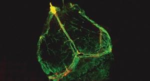 Przez dekady naukowcy byli przekonani, że mózg nie posiada żadnych naczyń limfatycznych, a w konsekwencji w ogóle nie jest połączony z systemem odpornościowym. Fot. University of Virginia
