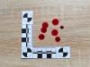 Podjęcie próby odpowiedzi na pytanie o czas powstania śladów krwawych jest możliwe dzięki procesom starzeniowym | fot. Alicja Menżyk