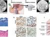 Grafika ilustrująca odkrycie – artykuł źródłowy. J. Gregory/Mount Sinah Health System, CC-BY-ND