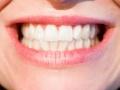 Zęby. Fot. pixabay.com